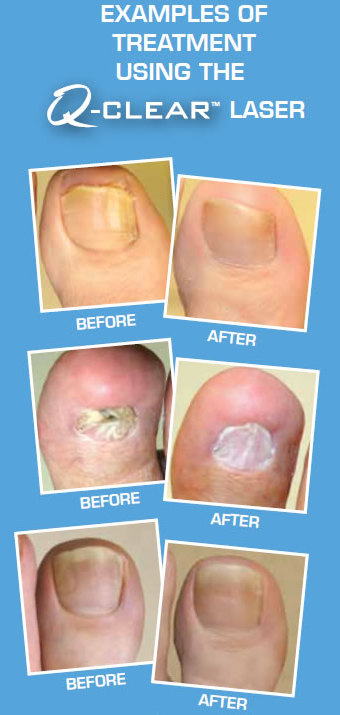 Q Clear Laser Treatment For Fungal Toenails
